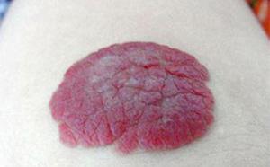 血管瘤有哪些分类